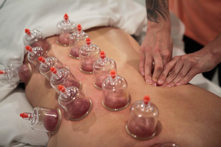 person receiving cupping therapy on his or her back